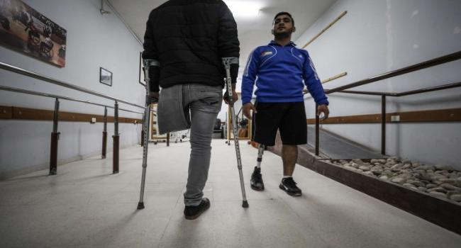 نقص التمويل الصحي قد يؤدي إلى 1700 عملية بتر أعضاء في غزة