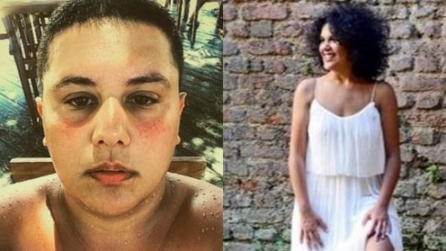 ممثلة تركية شهيرة تتحول جنسيًا إلى رجل
