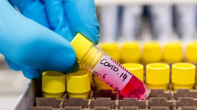 تسجيل 68 حالة وفاة و 1206 حالة إصابة جديدة بفيروس كورونا بتاريخ 20 نوفمبر الجاري